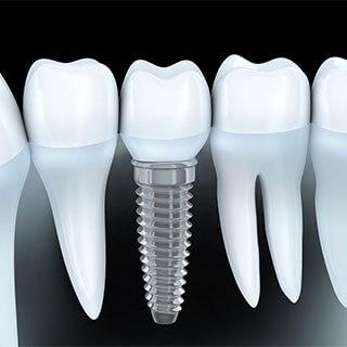 Leistung: Implantologie